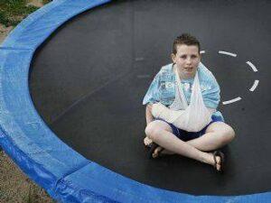 trampoline and hover board trauma