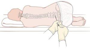 spinal tap lumbar puncture