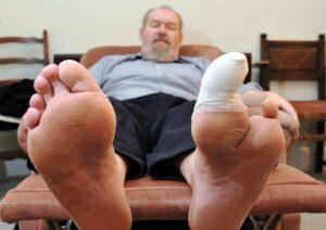 diabetic skin problems toe amputation